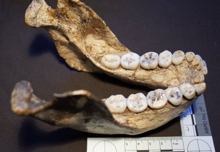 The jaw of Paranthropus robustus, a fossil hominin.